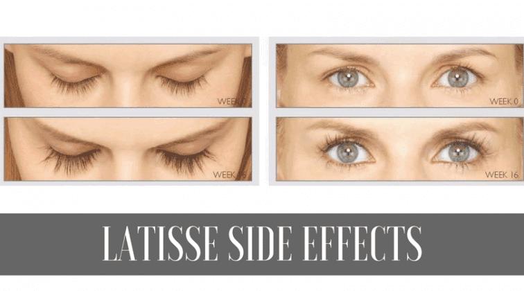 Latisse Side Effects